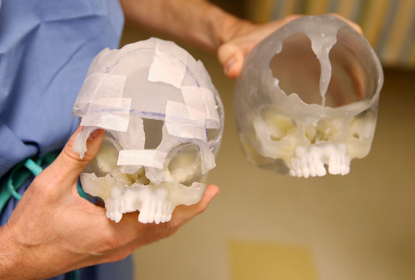 John G. Meara, Children's plastic surgeon-in-chief held up a 3-d model of Zoey's skull (right) and the model showing how the surgery would be performed at Boston Children's Hospital.