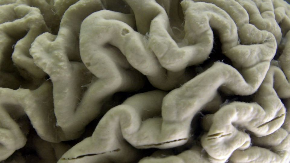 A section of a human brain with Alzheimer's disease on display at the Museum of Neuroanatomy at the University at Buffalo. Could the mind-destroying disease be prevented by treating inflammation?