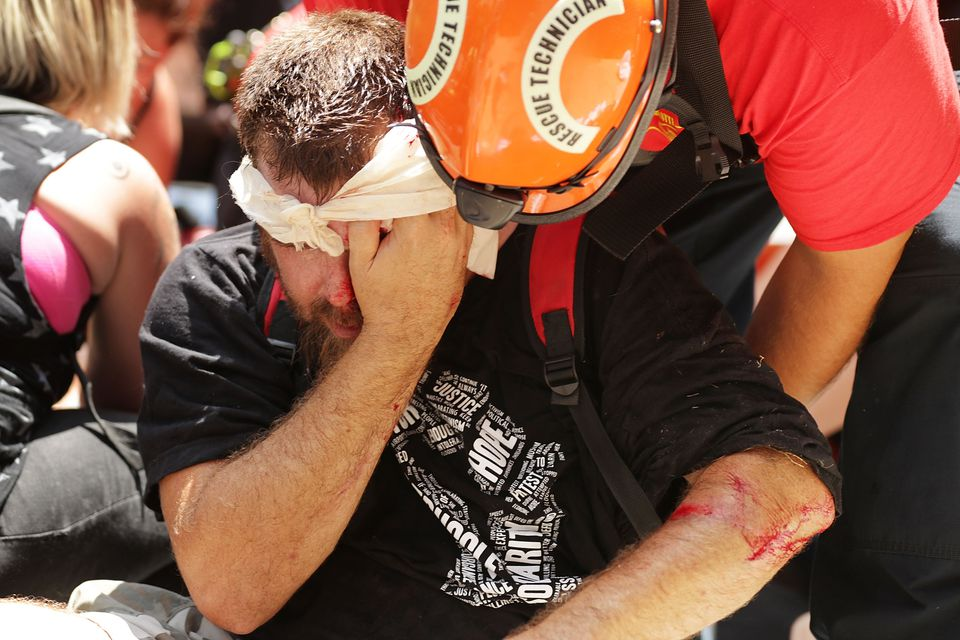Rescue workers and medics tended to many people who were injured when a car plowed through the crowd on Saturday in Charlottesville.