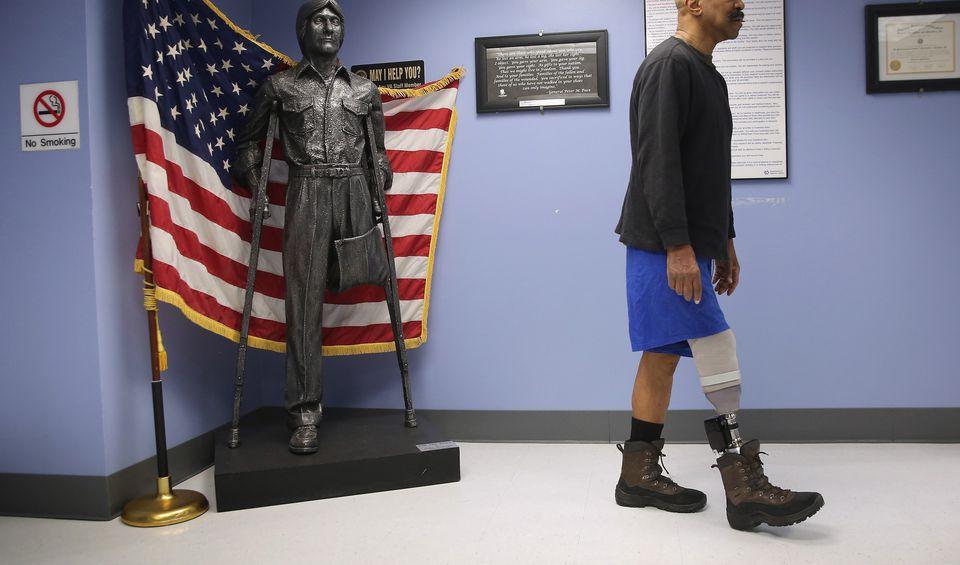 An amputee veteran at a VA hospital in New York City.
