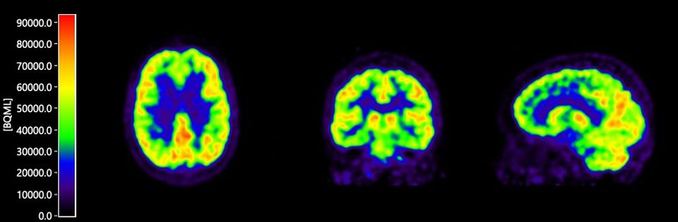 A brain scan taken of a patient in a study launched by Rodin Therapeutics. The Cambridge company is testing the radioactive substance, developed by a Belgium-based drug maker, as it prepares to test its experimental medicine to treat Alzheimer's disease.