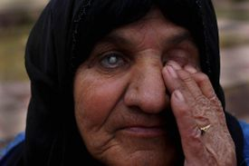 A 60-year-old woman is blind in her right eye as a result of the 1988 chemical attack on Halabja, when Iraqi war planes dropped bombs and shelled the Kurdish town.